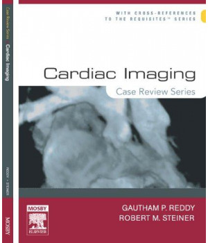 Cardiac Imaging: Case Review Series