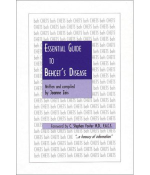 Essential Guide to Behcet\'s Disease