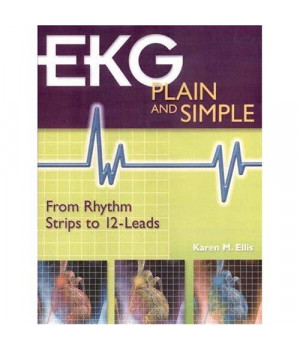 EKG Plain and Simple: From Rhythm Strips to 12-Leads