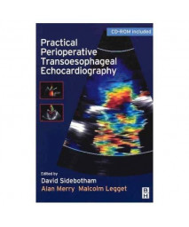 Practical Perioperative Transoesophageal Echocardiography: Text with CD-ROM, 1e
