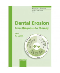 Dental Erosion: From Diagnosis to Therapy (Monographs in Oral Science, Vol. 20)