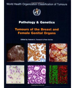 Pathology and Genetics of Tumours of the Breast and Female Genital Organs (IARC WHO Classification of Tumours)      (Paperback)